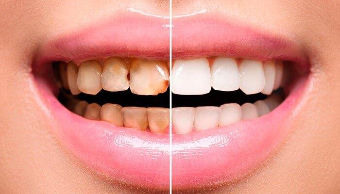 Восстановление зубов в Москве - варианты реставрации зубов